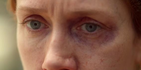 Uma visão aproximada dos olhos de Janete, sendo que o seu esquerdo tem uma marca roxa de agressão